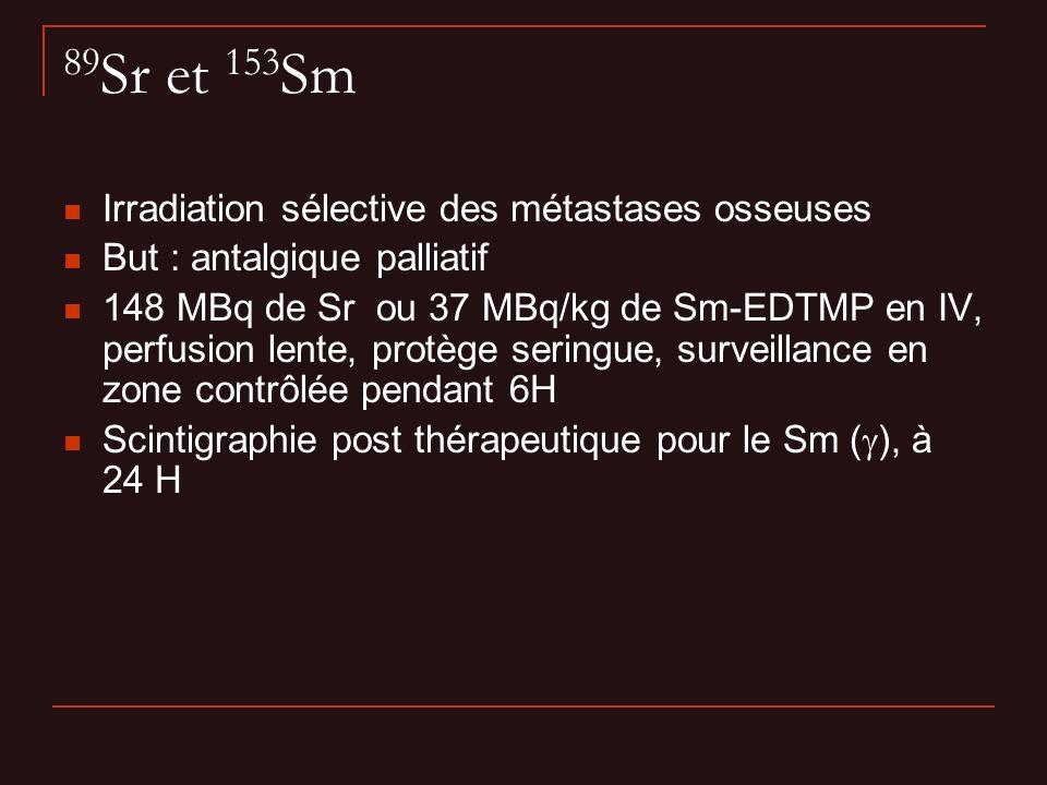 89 Sr et 153 Sm Irradiation sélective des métastases osseuses But : antalgique palliatif 148 MBq de Sr ou 37 MBq/kg de Sm-EDTMP en IV, perfusion lente