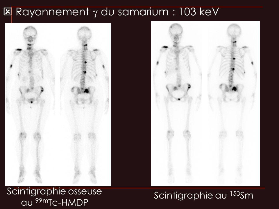 Scintigraphie osseuse au 99m Tc-HMDP Scintigraphie au 153 Sm Rayonnement du samarium : 103 keV