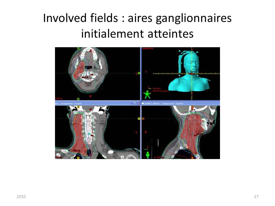 201027 Involved fields : aires ganglionnaires initialement atteintes