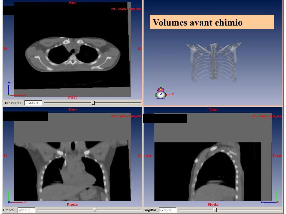 2010Dr Juliette THARIAT29 Volumes avant chimio