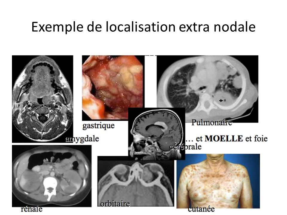 Exemple de localisation extra nodale