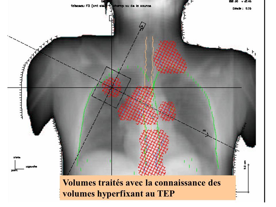 2010Dr Juliette THARIAT32 Volumes traités avec la connaissance des volumes hyperfixant au TEP