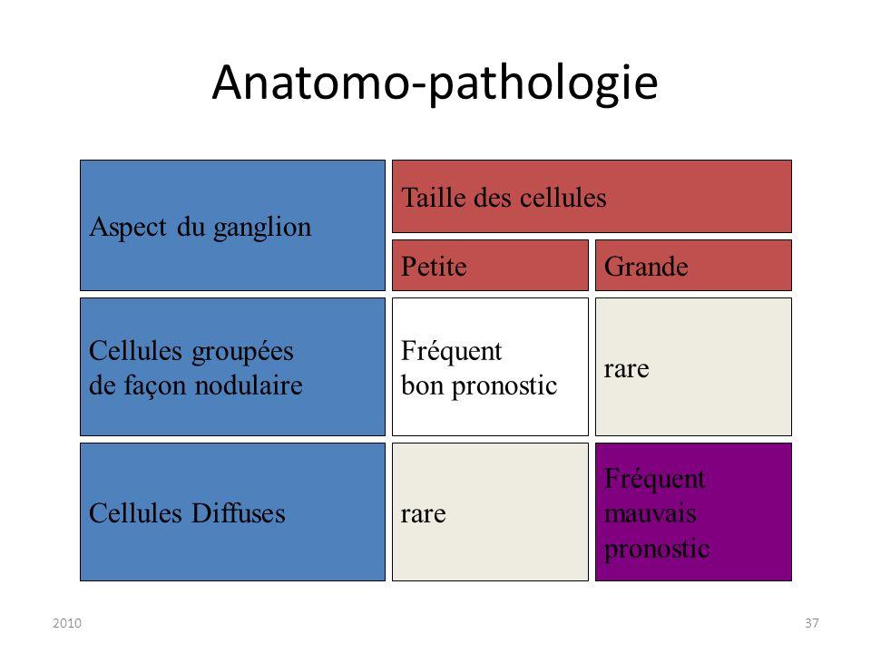 201037 Anatomo-pathologie Aspect du ganglion Taille des cellules Cellules groupées de façon nodulaire Cellules Diffuses PetiteGrande Fréquent bon pron