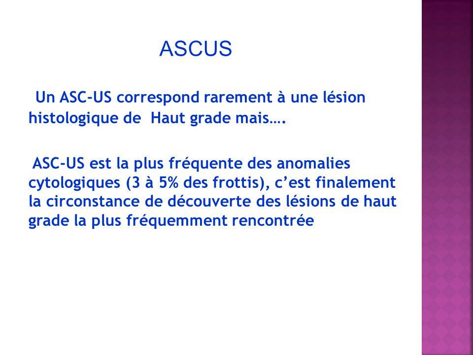 Un ASC-US correspond rarement à une lésion histologique de Haut grade mais…. ASC-US est la plus fréquente des anomalies cytologiques (3 à 5% des frott