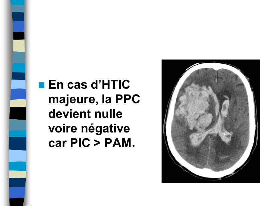 En cas dHTIC majeure, la PPC devient nulle voire négative car PIC > PAM.