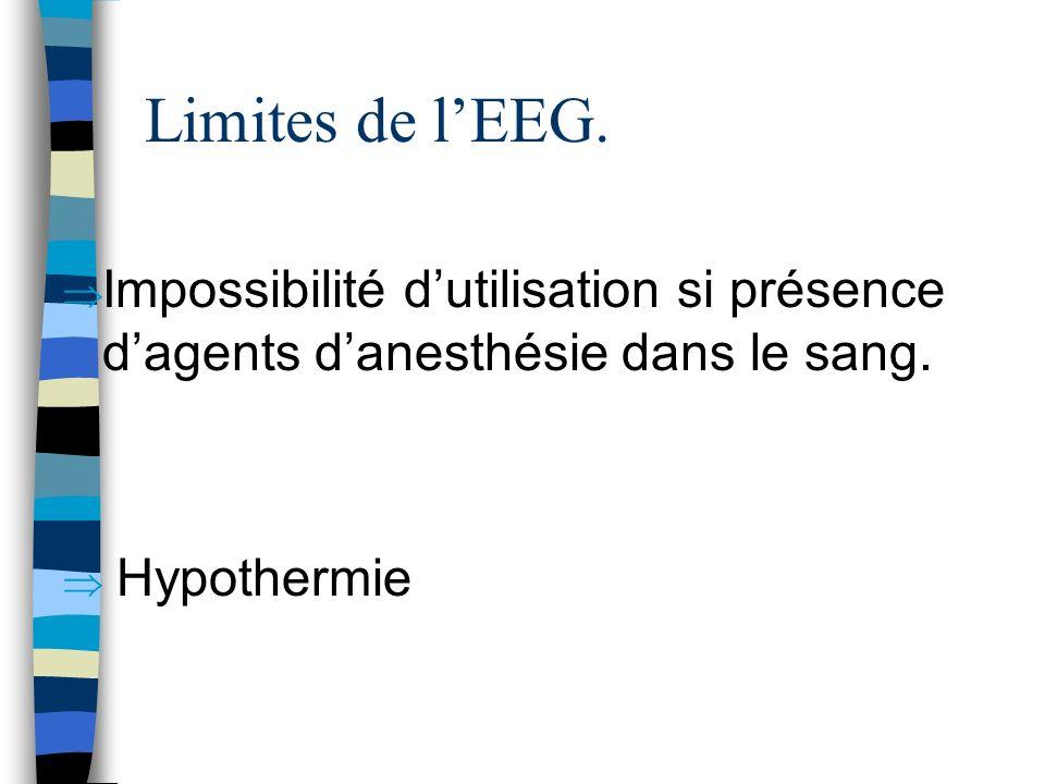 Limites de lEEG. Impossibilité dutilisation si présence dagents danesthésie dans le sang. Hypothermie
