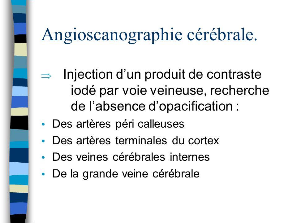 Angioscanographie cérébrale. Injection dun produit de contraste iodé par voie veineuse, recherche de labsence dopacification : Des artères péri calleu