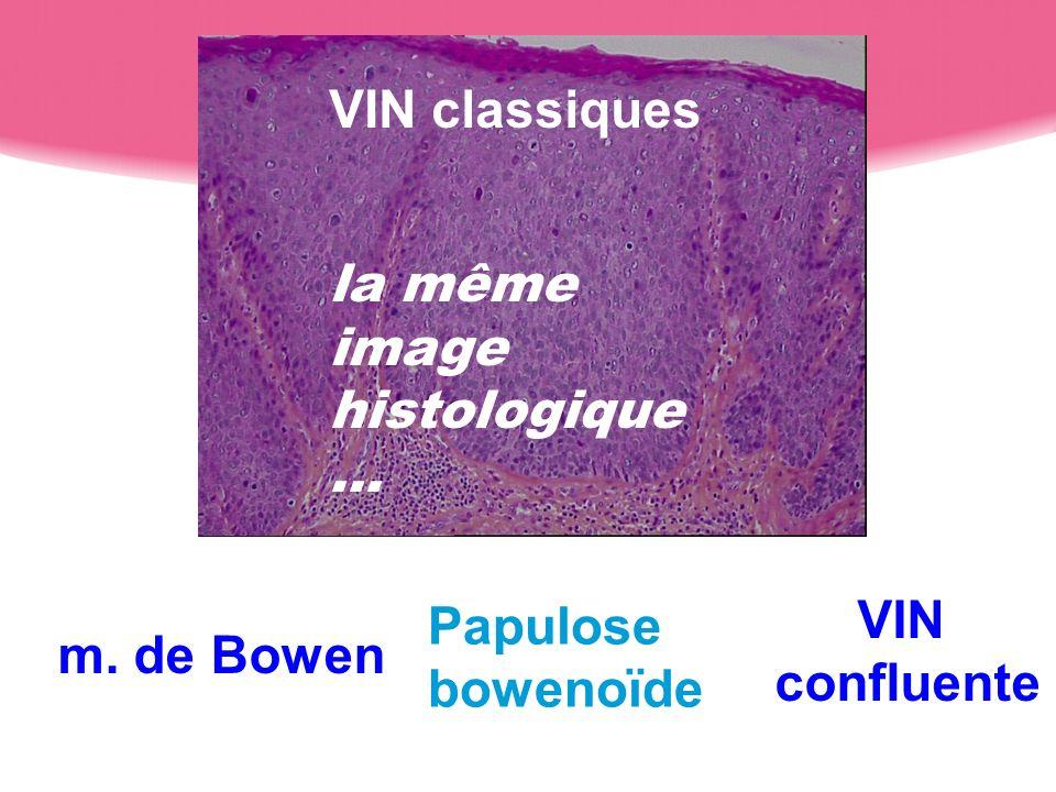 m. de Bowen Papulose bowenoïde VIN confluente VIN classiques la même image histologique …