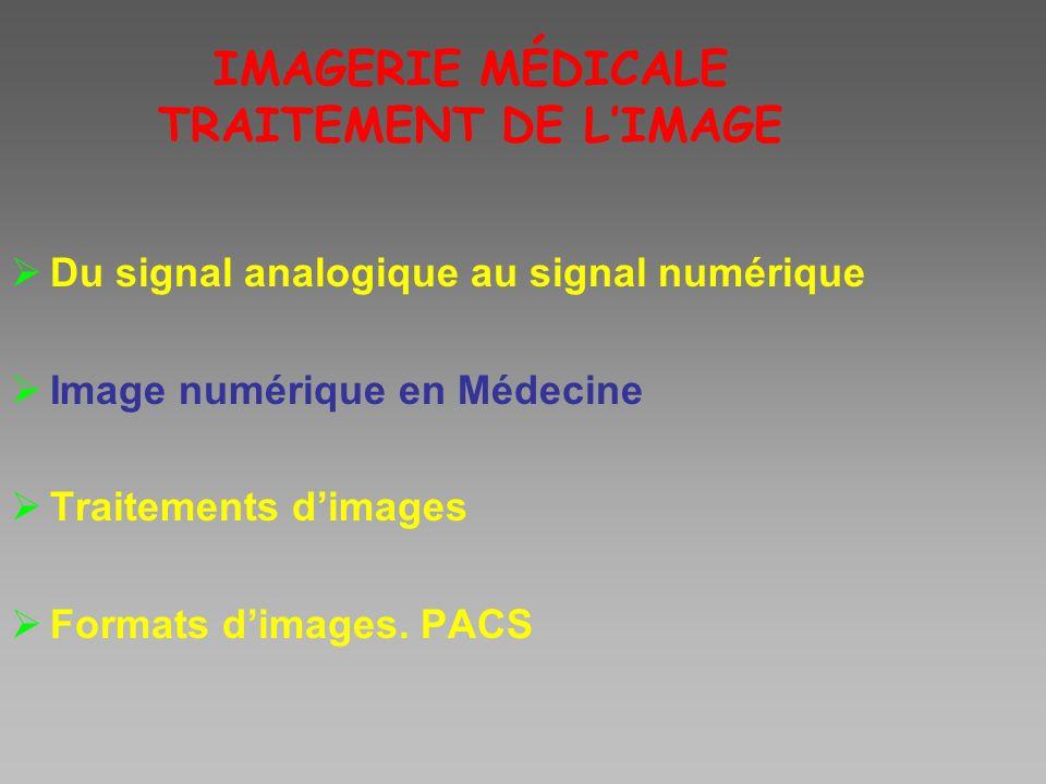 IMAGERIE MÉDICALE TRAITEMENT DE LIMAGE Du signal analogique au signal numérique Image numérique en Médecine Traitements dimages Formats dimages. PACS