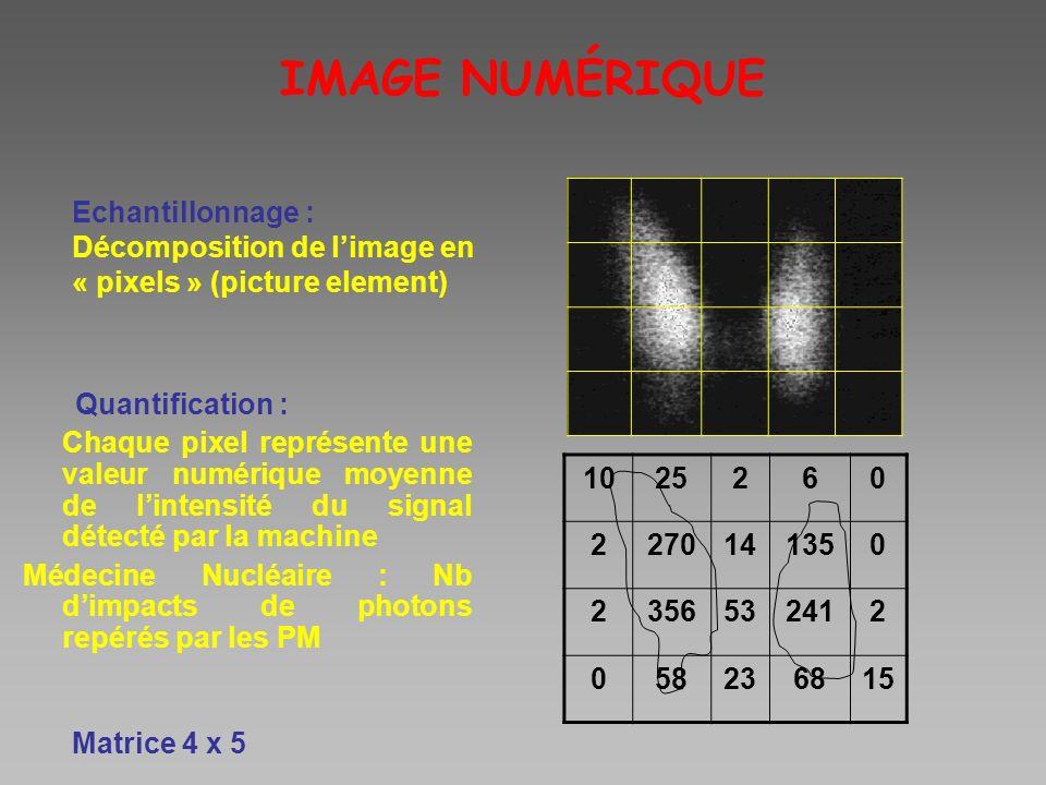 IMAGE NUMÉRIQUE Quantification : Chaque pixel représente une valeur numérique moyenne de lintensité du signal détecté par la machine Médecine Nucléair