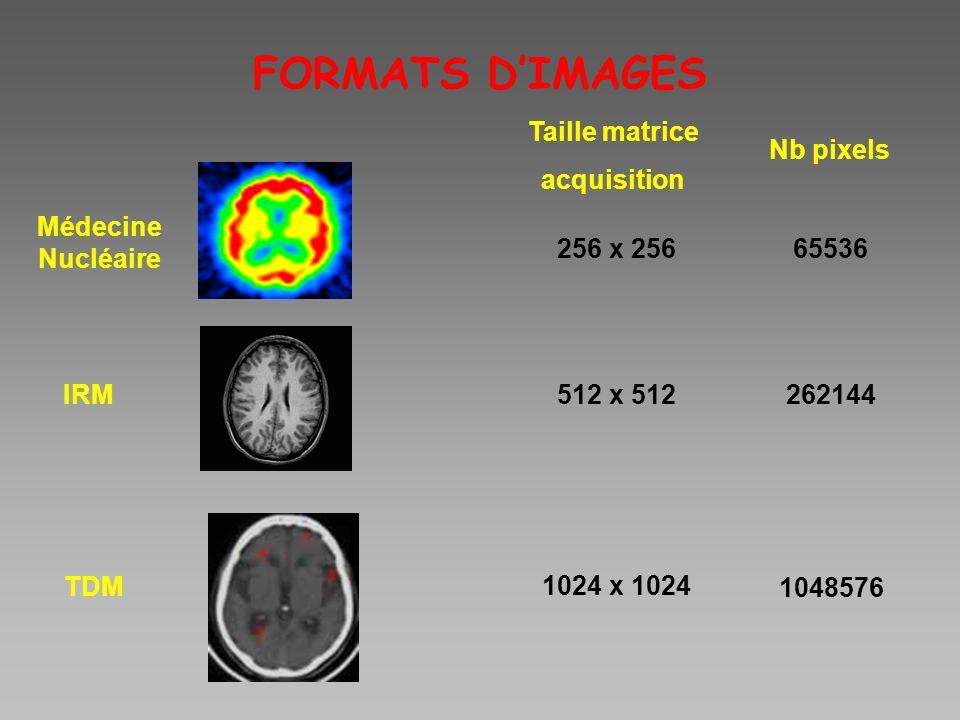 FORMATS DIMAGES Médecine Nucléaire IRM TDM Taille matrice acquisition Nb pixels 256 x 256 512 x 512 1024 x 1024 65536 262144 1048576