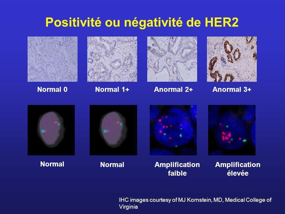 Positivité ou négativité de HER2 Normal 0Normal 1+Anormal 2+Anormal 3+ Normal Amplification faible Amplification élevée IHC images courtesy of MJ Korn