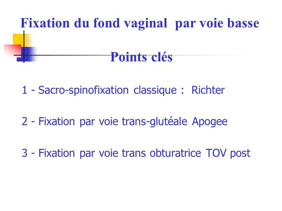 1 - Sacro-spinofixation classique : Richter 2 - Fixation par voie trans-glutéale Apogee 3 - Fixation par voie trans obturatrice TOV post Fixation du fond vaginal par voie basse Points clés