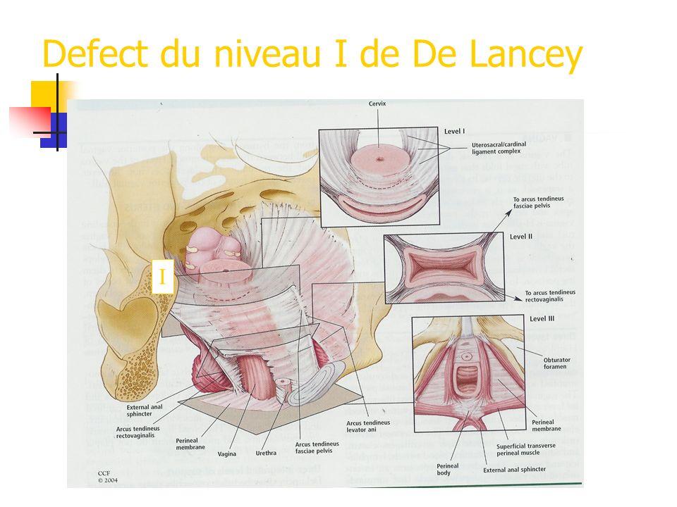 Defect du niveau I de De Lancey I