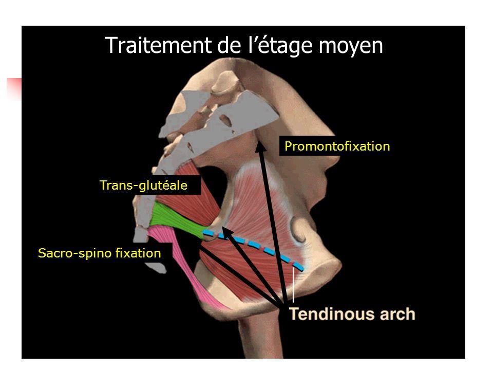 Traitement de létage moyen Promontofixation Sacro-spino fixation Trans-glutéale