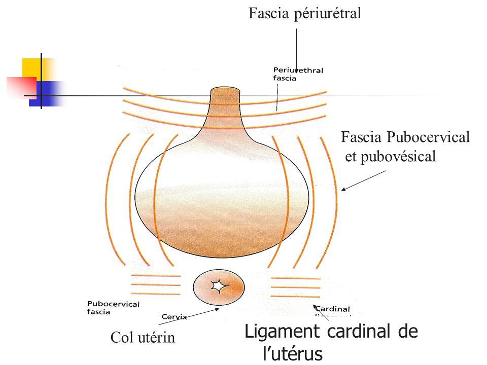 Fascia Pubocervical et pubovésical Ligament cardinal de lutérus Col utérin Fascia périurétral