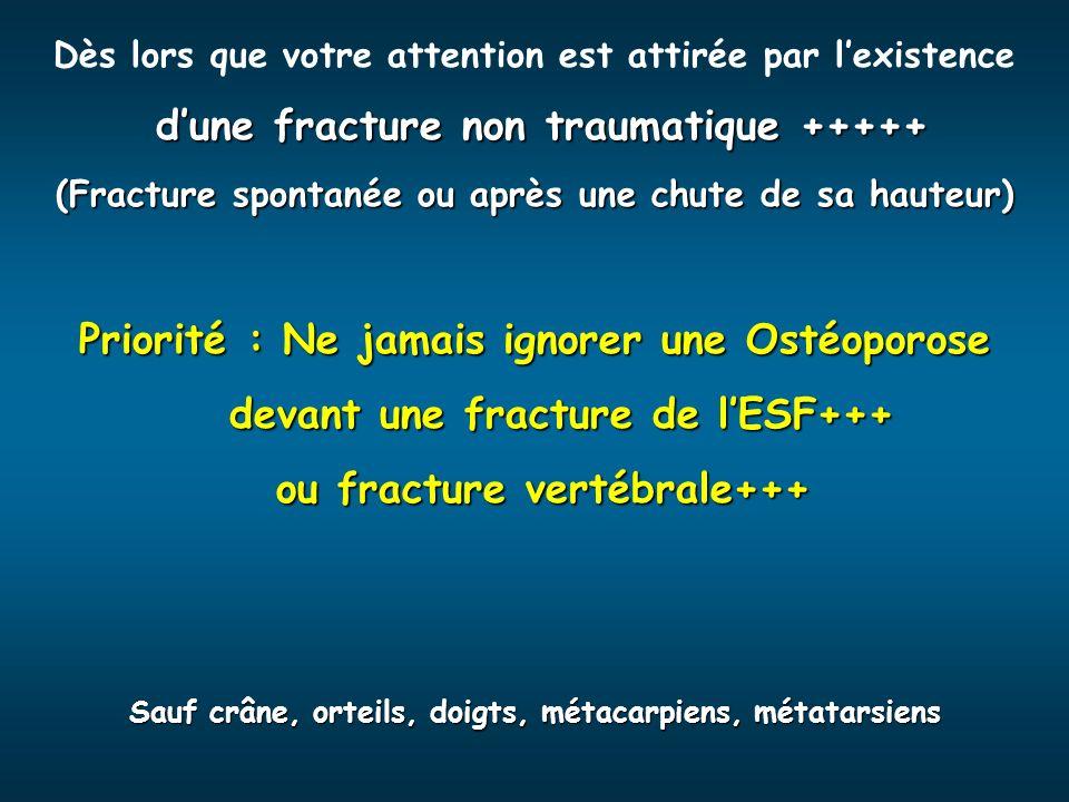 Dès lors que votre attention est attirée par lexistence dune fracture non traumatique +++++ (Fracture spontanée ou après une chute de sa hauteur) Prio