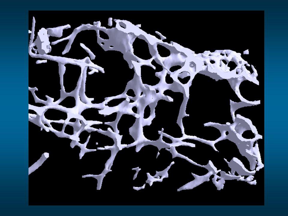 Capital osseux faible/moyen vers 25 ans Facteurs génétiques Défavorables Ration calcique faible Anorexie Tabagisme Sédentarité Legrand E, Audran M.