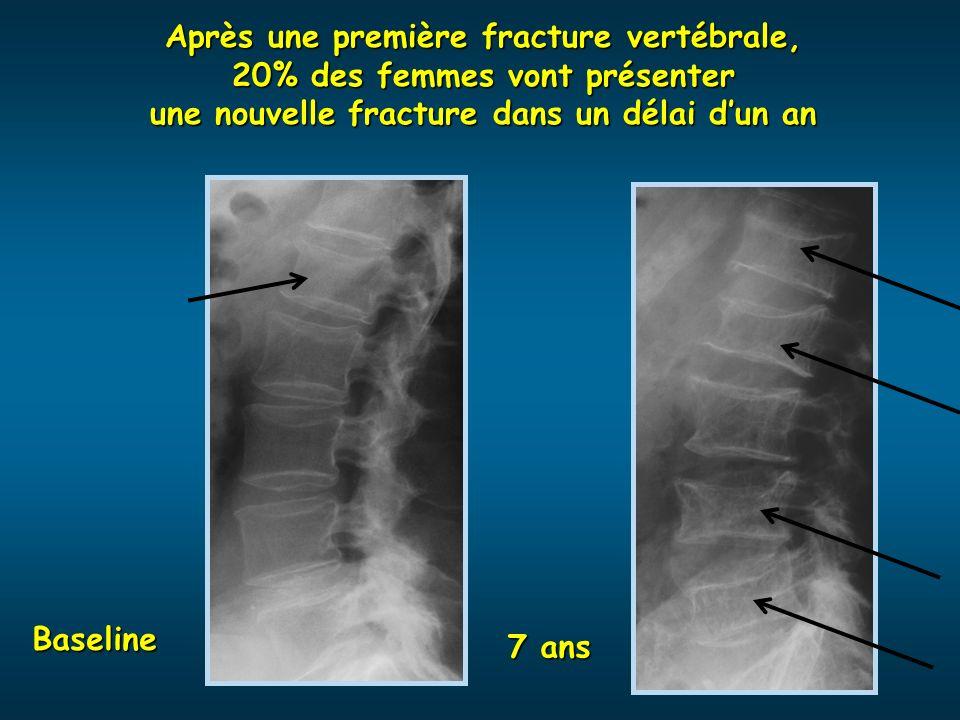 Après une première fracture vertébrale, 20% des femmes vont présenter une nouvelle fracture dans un délai dun an Baseline 7 ans