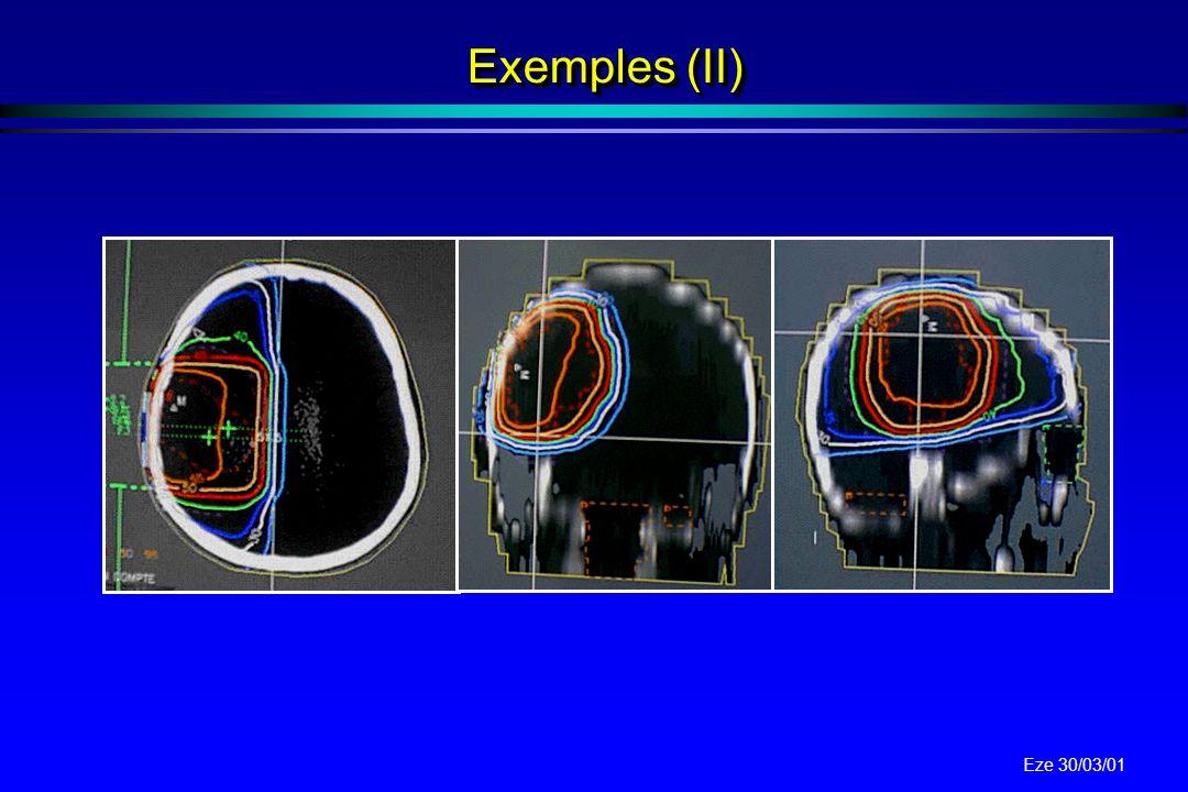 Eze 30/03/01 ExempleExemple histogrammes dose / volume