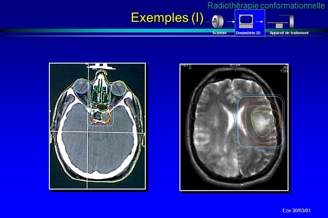 Eze 30/03/01 Scanner VS IRM IRM Multiplan Séquences multiples Haute précision pour la localisation des structures Déplacement chimique IRM Multiplan S