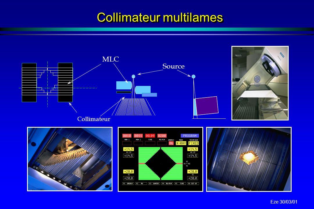Eze 30/03/01 Exemples (I) Radiothérapie conformationnelle Scanner Dosimètrie 3D Appareil de traitement