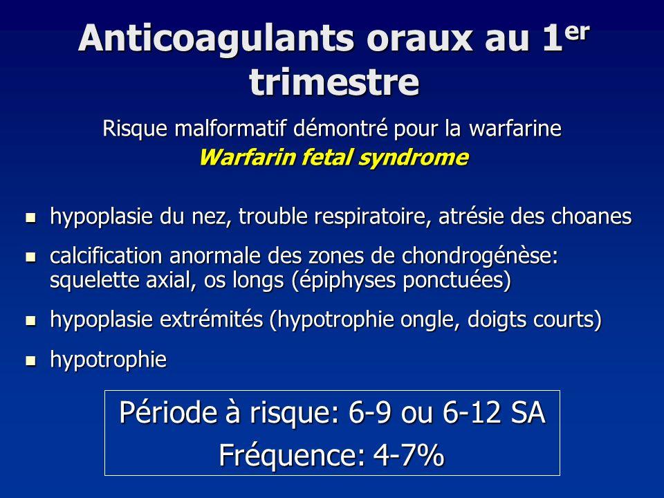 Anticoagulants oraux au 1 er trimestre Risque malformatif démontré pour la warfarine Warfarin fetal syndrome hypoplasie du nez, trouble respiratoire,