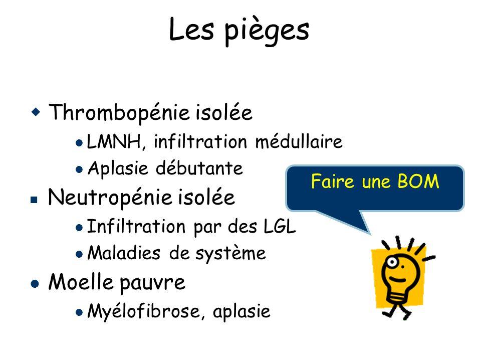 Thrombopénie isolée LMNH, infiltration médullaire Aplasie débutante Neutropénie isolée Infiltration par des LGL Maladies de système Moelle pauvre Myélofibrose, aplasie Les pièges Faire une BOM