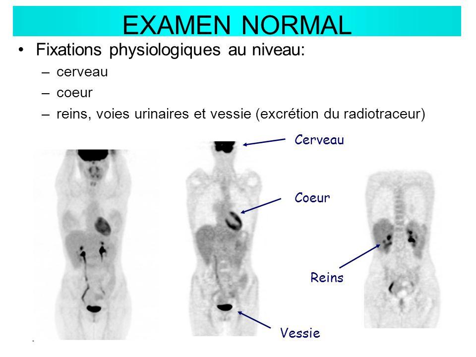 EXAMEN NORMAL Coeur Cerveau Reins Vessie Fixations physiologiques au niveau: –cerveau –coeur –reins, voies urinaires et vessie (excrétion du radiotrac