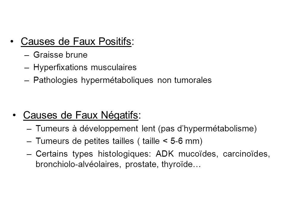 Causes de Faux Positifs: –Graisse brune –Hyperfixations musculaires –Pathologies hypermétaboliques non tumorales Causes de Faux Négatifs: –Tumeurs à d