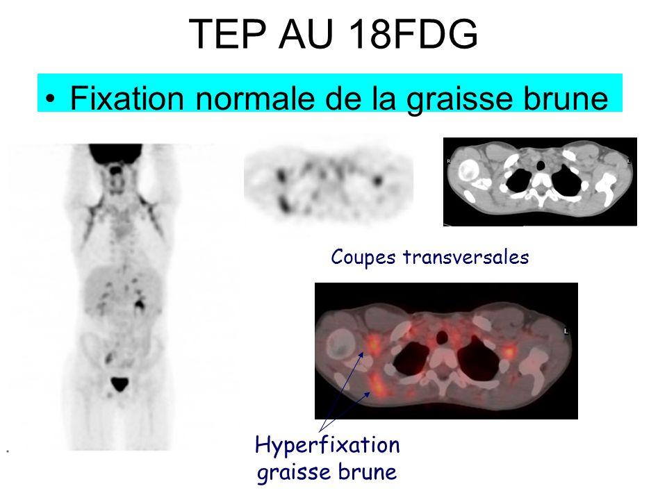 TEP AU 18FDG Fixation normale de la graisse brune Coupes transversales Hyperfixation graisse brune