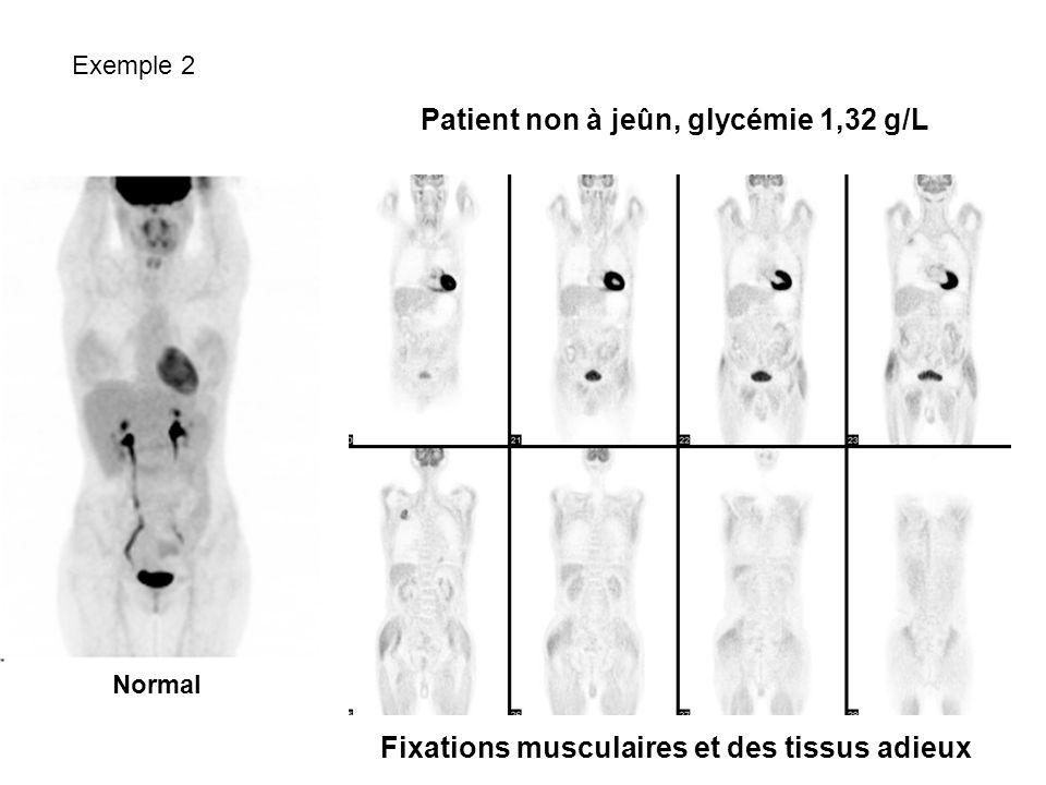 Normal Patient non à jeûn, glycémie 1,32 g/L Fixations musculaires et des tissus adieux Exemple 2