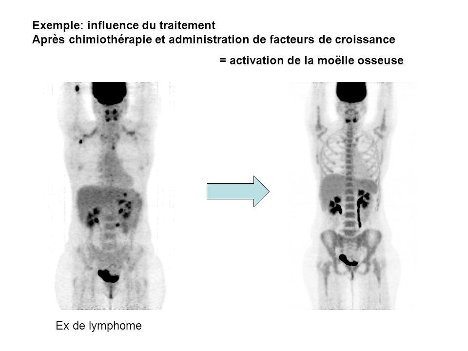 Exemple: influence du traitement Après chimiothérapie et administration de facteurs de croissance = activation de la moëlle osseuse Ex de lymphome
