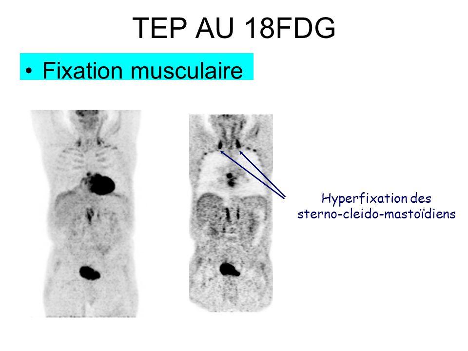 TEP AU 18FDG Fixation musculaire Hyperfixation des sterno-cleido-mastoïdiens