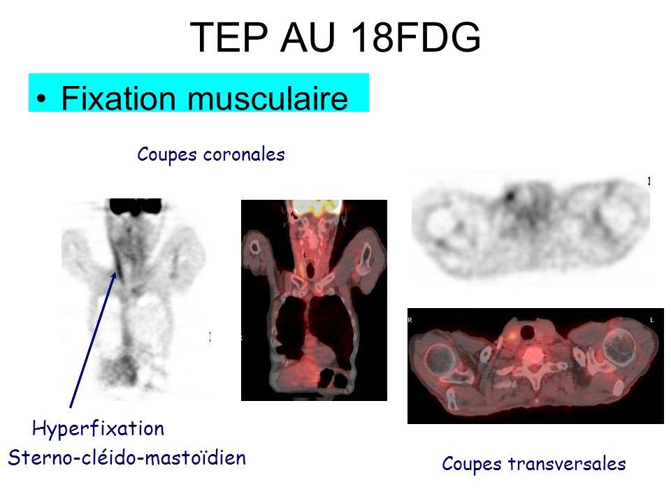TEP AU 18FDG Fixation musculaire Coupes coronales Hyperfixation Sterno-cléido-mastoïdien Coupes transversales