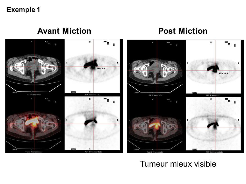 Avant MictionPost Miction Tumeur mieux visible Exemple 1