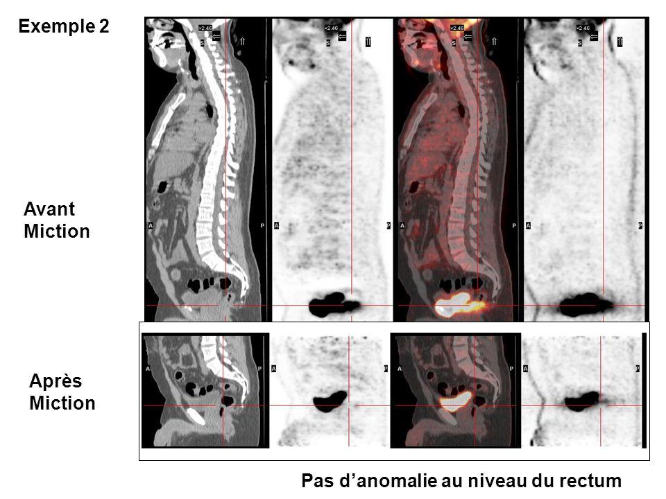 Avant Miction Après Miction Exemple 2 Pas danomalie au niveau du rectum