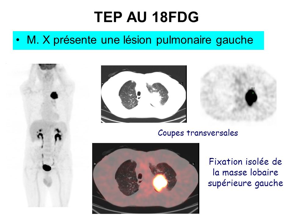 TEP AU 18FDG M. X présente une lésion pulmonaire gauche Coupes transversales Fixation isolée de la masse lobaire supérieure gauche