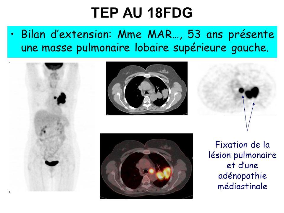 Fixation de la lésion pulmonaire et dune adénopathie médiastinale TEP AU 18FDG Bilan dextension: Mme MAR…, 53 ans présente une masse pulmonaire lobair