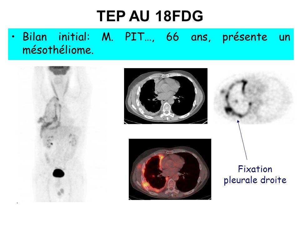 Fixation pleurale droite TEP AU 18FDG Bilan initial: M. PIT…, 66 ans, présente un mésothéliome.