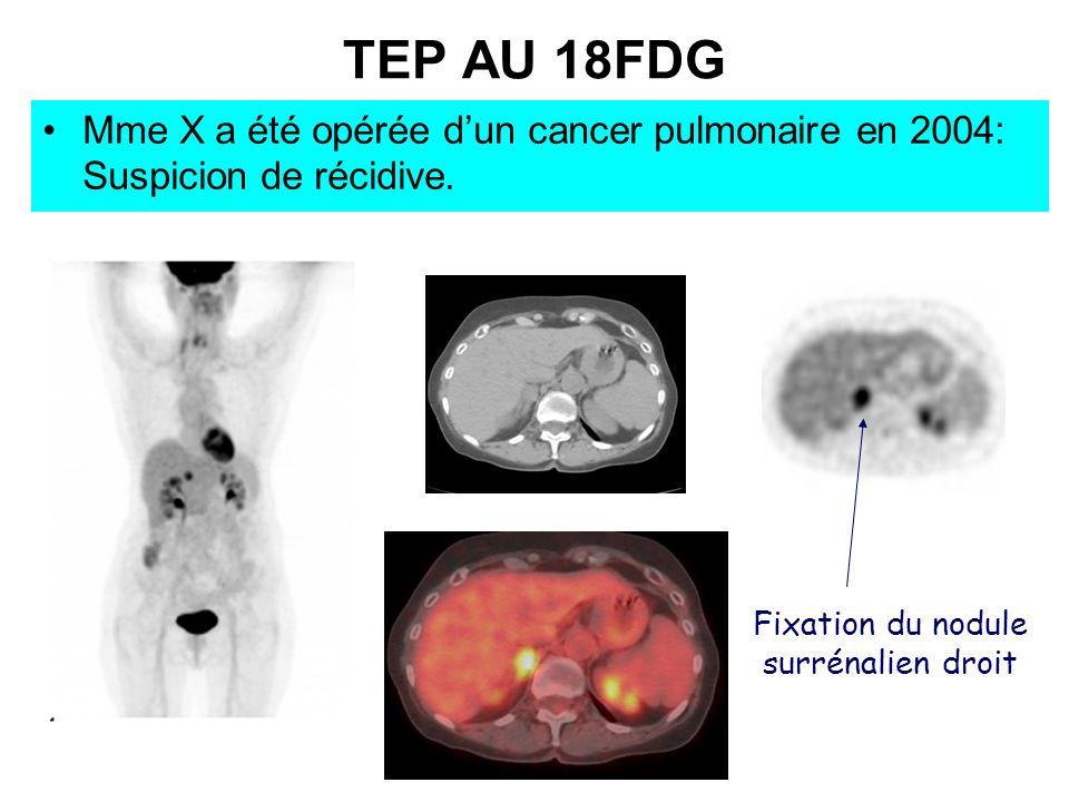Fixation du nodule surrénalien droit TEP AU 18FDG Mme X a été opérée dun cancer pulmonaire en 2004: Suspicion de récidive.
