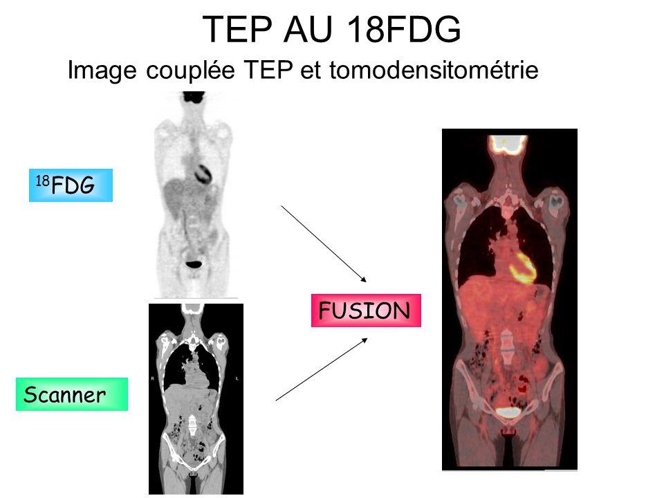 TEP AU 18FDG 18 FDG Scanner FUSION Image couplée TEP et tomodensitométrie