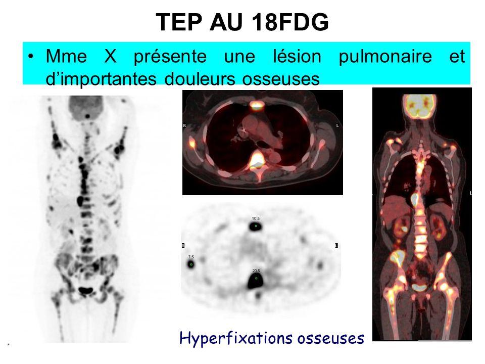 TEP AU 18FDG Mme X présente une lésion pulmonaire et dimportantes douleurs osseuses Hyperfixations osseuses