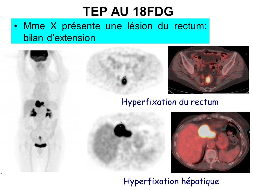 TEP AU 18FDG Mme X présente une lésion du rectum: bilan dextension Hyperfixation du rectum Hyperfixation hépatique