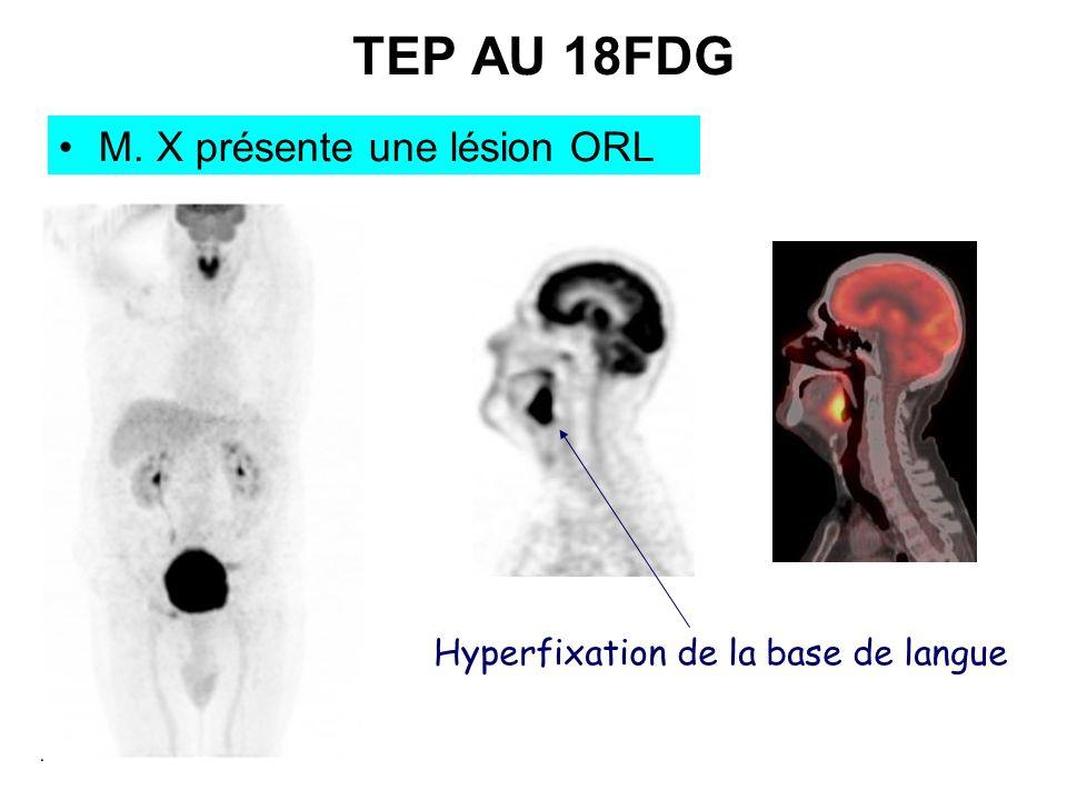 TEP AU 18FDG M. X présente une lésion ORL Hyperfixation de la base de langue