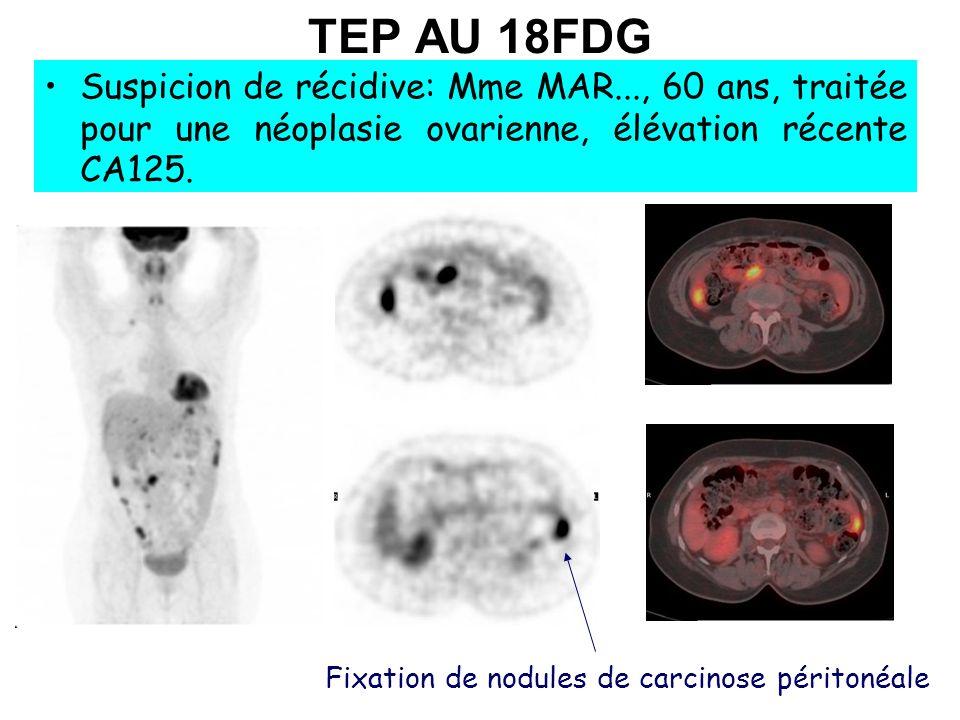 Fixation de nodules de carcinose péritonéale TEP AU 18FDG Suspicion de récidive: Mme MAR..., 60 ans, traitée pour une néoplasie ovarienne, élévation r