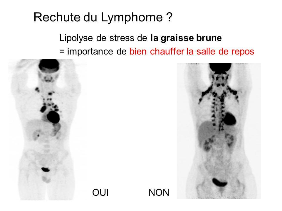 Lipolyse de stress de la graisse brune = importance de bien chauffer la salle de repos Rechute du Lymphome ? NONOUI