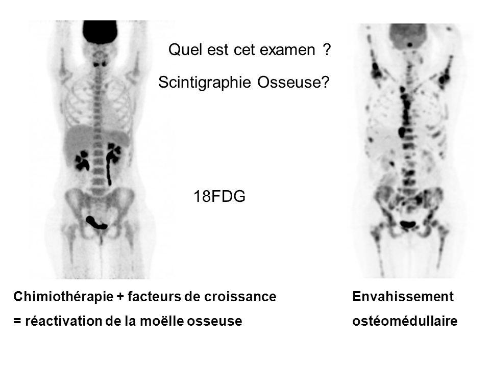 Chimiothérapie + facteurs de croissance = réactivation de la moëlle osseuse Quel est cet examen ? Scintigraphie Osseuse? 18FDG Envahissement ostéomédu
