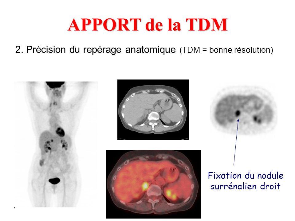 APPORT de la TDM 2. Précision du repérage anatomique (TDM = bonne résolution) Fixation du nodule surrénalien droit