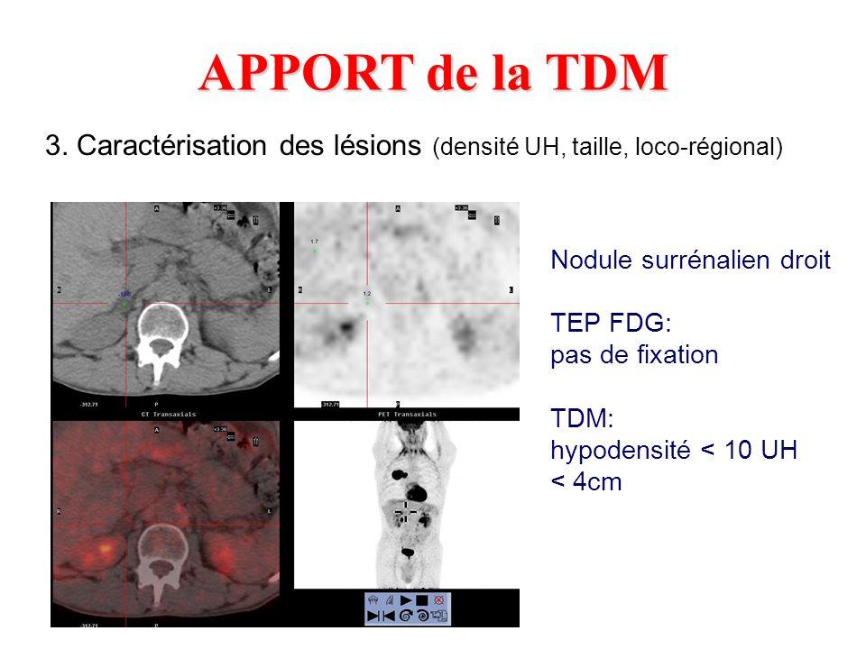 APPORT de la TDM 3. Caractérisation des lésions (densité UH, taille, loco-régional) Nodule surrénalien droit TEP FDG: pas de fixation TDM: hypodensité
